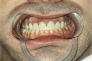 White healthy front teeth
