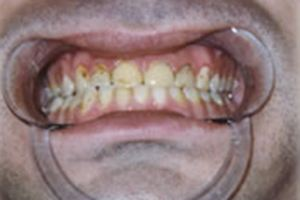 Severely discolored front teeth