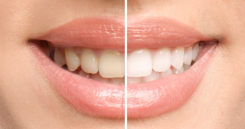 Professional teeth whitening from cosmetic dentist
